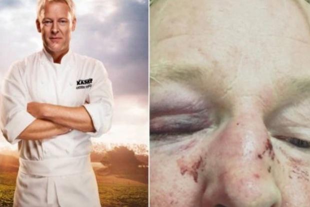Szwedzki kucharz pobity, bo wyglądał jak Donald Trump?