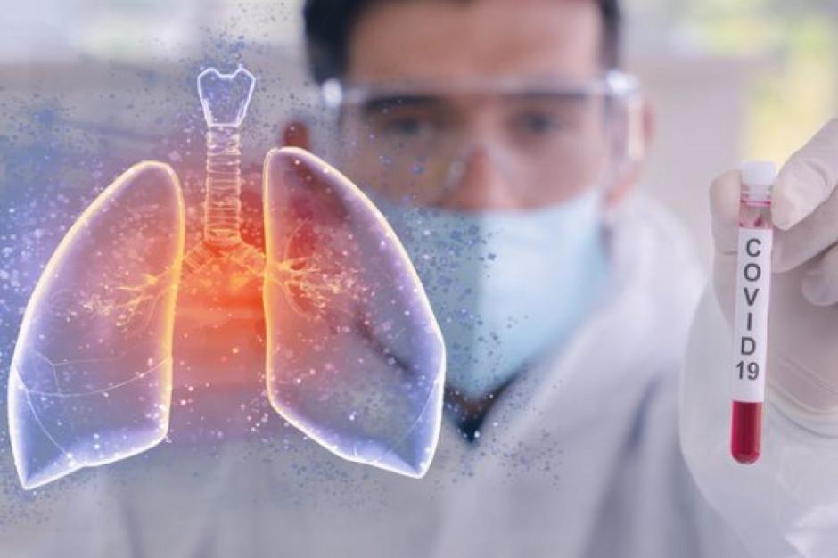 Niemal 30 tys. zakażeń COVID, najwięcej od początku pandemii
